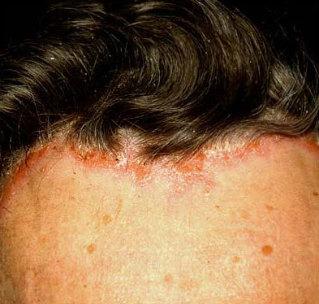 psoriazisul scalpului și pierderea în greutate
